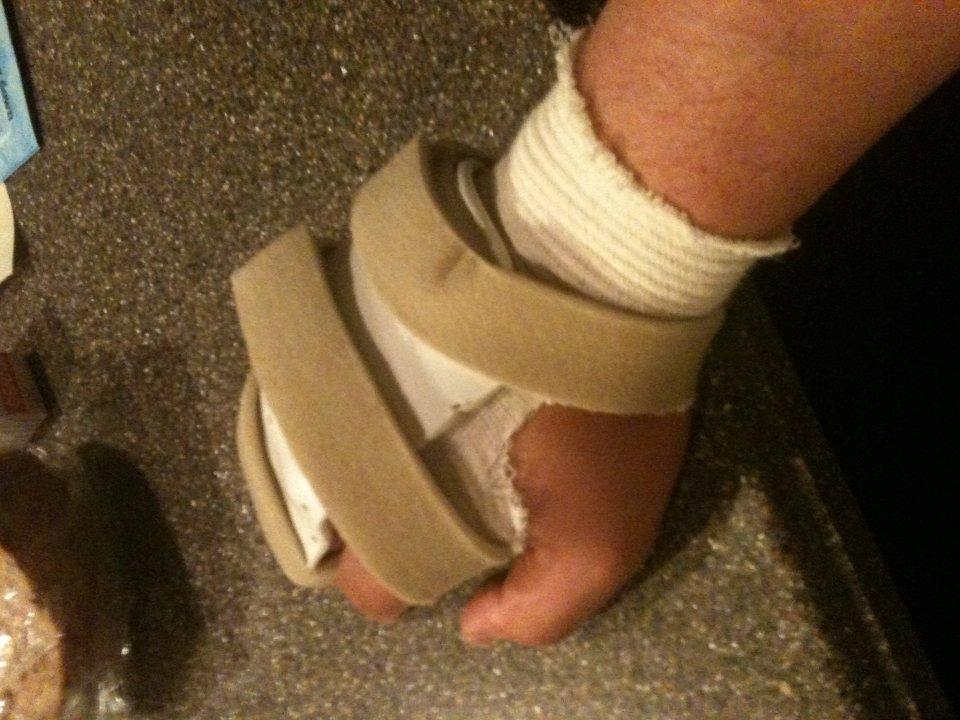Permanent Splint