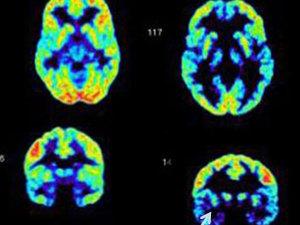 Orbital Brain Scan